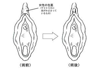 クリトリス 包茎